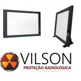 onde comprar negatoscópio radiografia SAO MIGUEL DO IGUAÇU